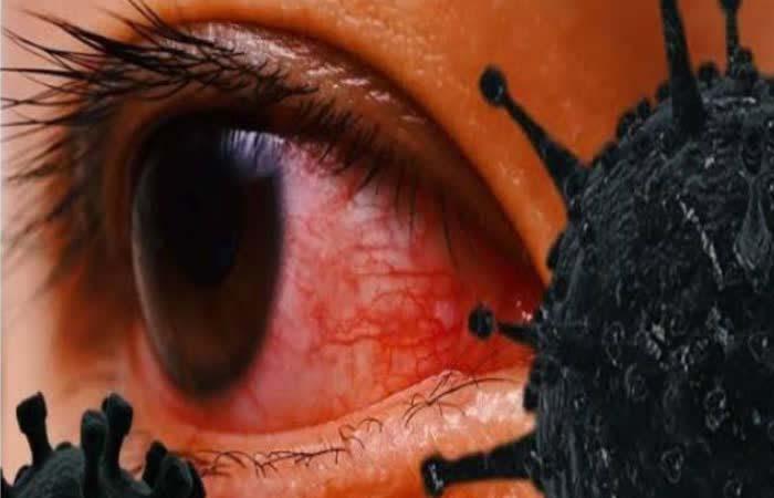 मुंबई में ब्लैक फंगस का तांडव, निकालनी पड़ी तीन बच्चों की आंखें