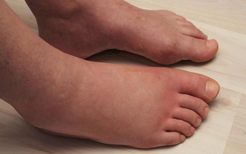 पैरों की सूजन को न ले हल्के में हो सकती है ये गंभीर बीमारियां